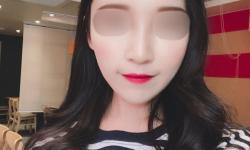 앞볼+눈밑 필러 후기 ! !
