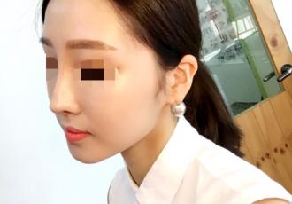 미앤미 서면점 이마필러 후기!