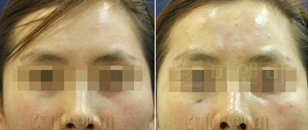 광채피부, 볼륨회복/스컬트라병행시술