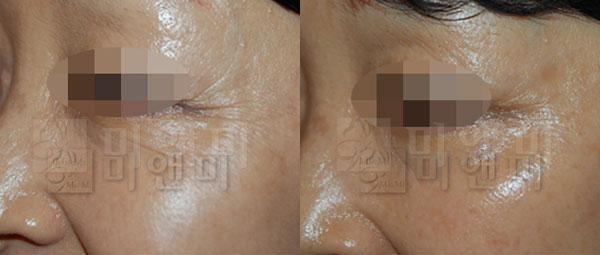 눈가주름보톡스 - 더모톡신 시술전후