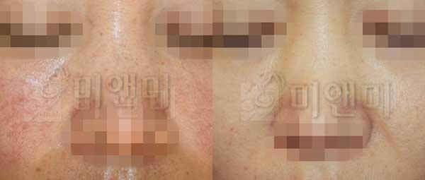 [시술전후사진] 주근깨/잡티/홍조 치료 - IPL전후사진
